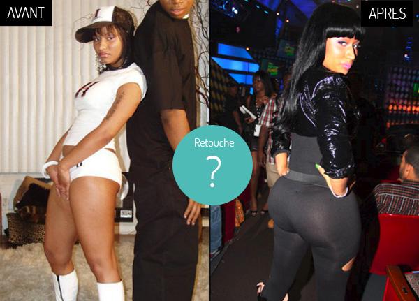 Nicki-Minaj-fesses-chirurgie-avant-apres